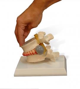 Hernia Discal y Protrusión Discal
